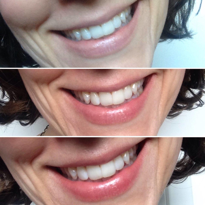Weleda Tinted Lip Balm…